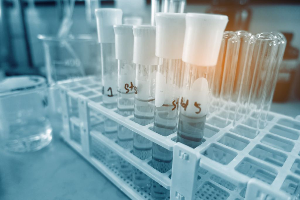 Health Care Test Tubes for DNA genetic testing